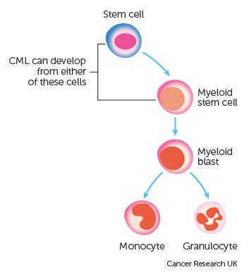 About chronic myeloid leukaemia | CML | Cancer Research UK