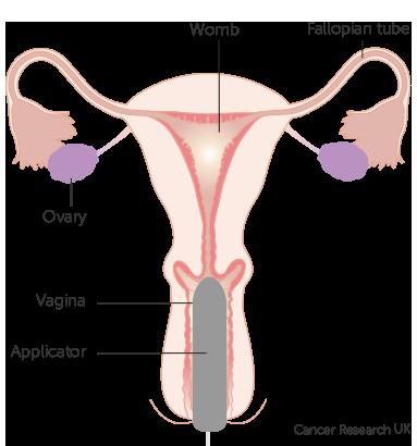 internal-vagina-pics-naked-busty-punk