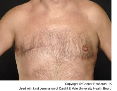 Male breast cancer 3 months after mastectomy.jpg