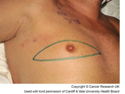 Male breast cancer - mastectomy