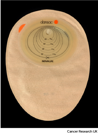 Photo showing the back of a colostomy bag