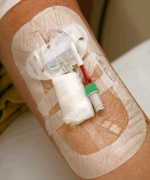 Photograph of a PICC line on an arm