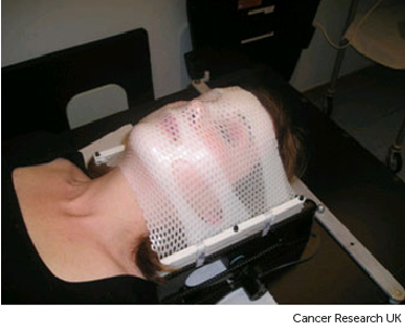 Photograph of a stereotactic radiotherapy mask for treating brain, head and neck cancers