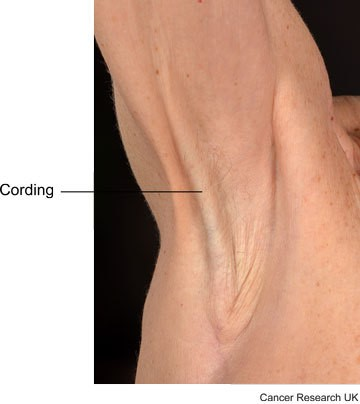 Picture showing cording in the armpit