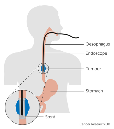 Oesophageal stent | Oesophageal cancer | Cancer Research UK