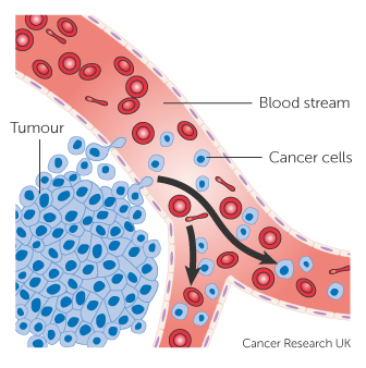 Diagram showing secondary liver cancer