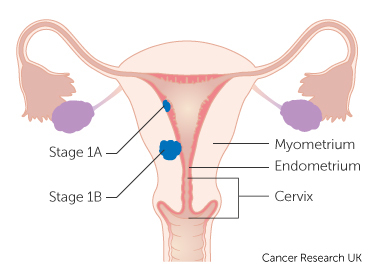 Stage 1 womb cancer.jpg