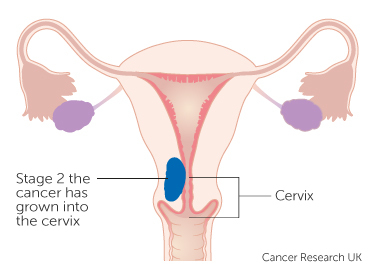 Diagram showing stage 2 womb cancer