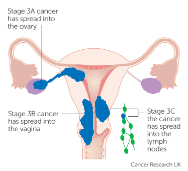 Diagram showing stage 3 womb cancer