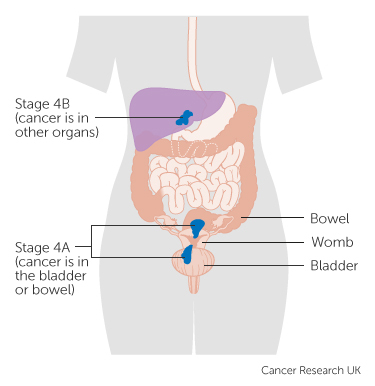 Stage 4 Womb Cancer Cancer Research Uk
