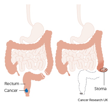 Diagram of TME for rectal cancer