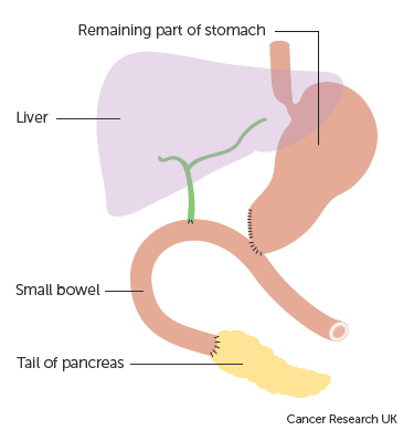 Diagram showing how the stomach and pancreas are joined to the bowel after a Whipple's operation for cancer of the pancreas.