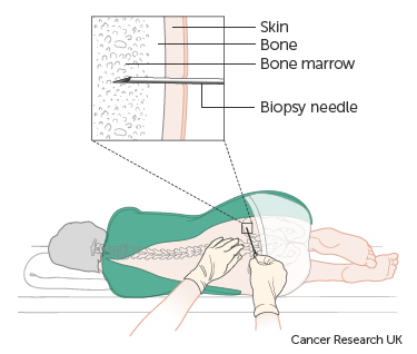 bone marrow test.jpg
