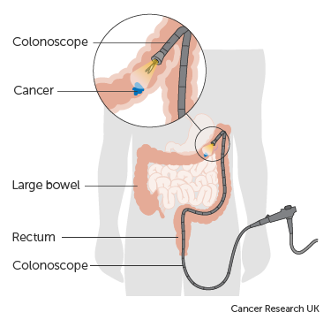 Surgery To Remove A Small Part Of The Bowel Lining Local Resection Bowel Cancer Cancer Research Uk