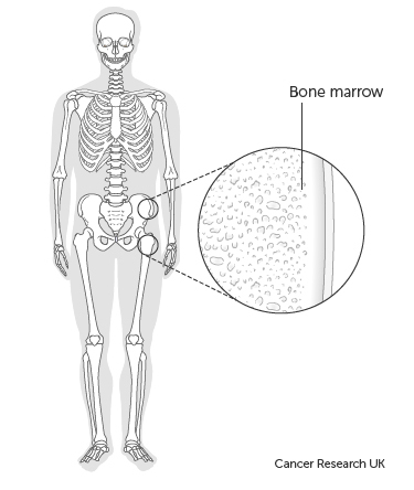 Diagram showing where the bone marrow is in the hip bones.