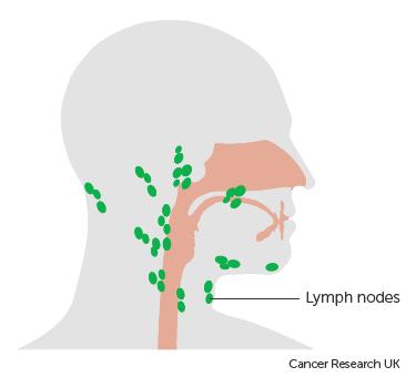 Diagram showing the lymph nodes near the pharynx (throat)