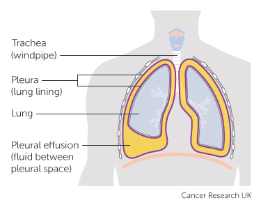 Diagram showing symptoms of secondary lung cancer