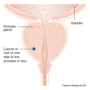 Diagram showing stage 1 prostate cancer