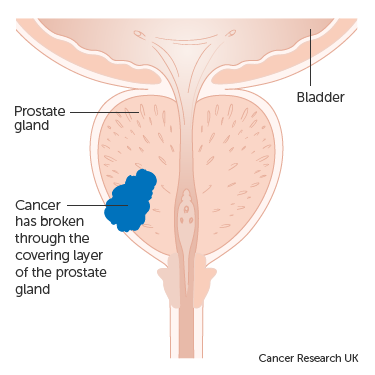 Diagram showing stage 3 prostate cancer