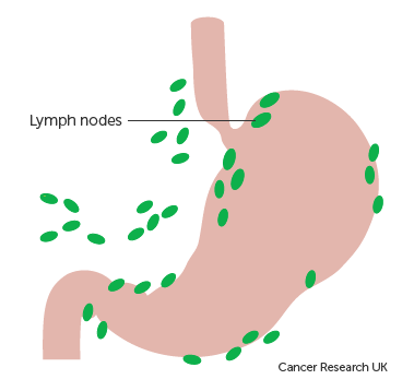 Diagram showing lymph nodes