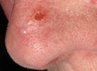 Photos of skin cancer | Skin cancer | Cancer Research UK