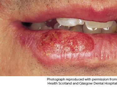 Photo showing cancer on lip