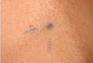 Photograph of radiotherapy tattoo marks