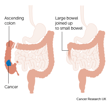 Colectomy Bowel Cancer Cancer Research Uk
