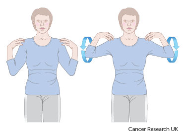 Exercises after breast reconstruction using muscle | Breast cancer