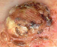 Photograph of squamous cell cancer
