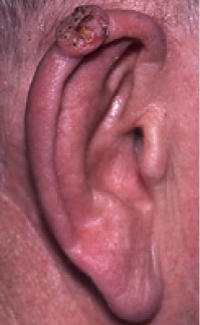 Photographs of squamous cell cancer on ear