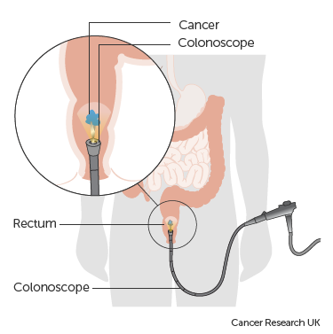 Diagram of transanal resection for rectal cancer