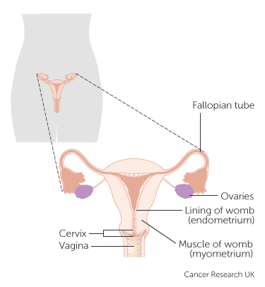 womb cancer.jpg